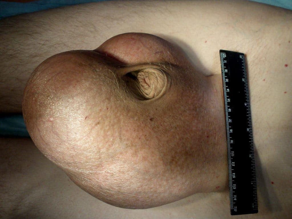 Болит придаток яичка после операции варикоцеле