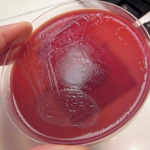 Протей бактерия у ребенка в кале