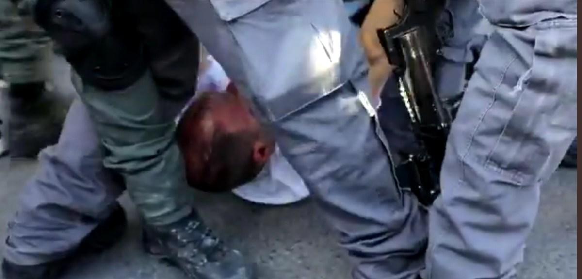 Brutálisan megverték a rendőrök az Egyesült Lista egyetlen zsidó képviselőjét egy tüntetésen