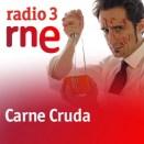 carne_cruda_radio3