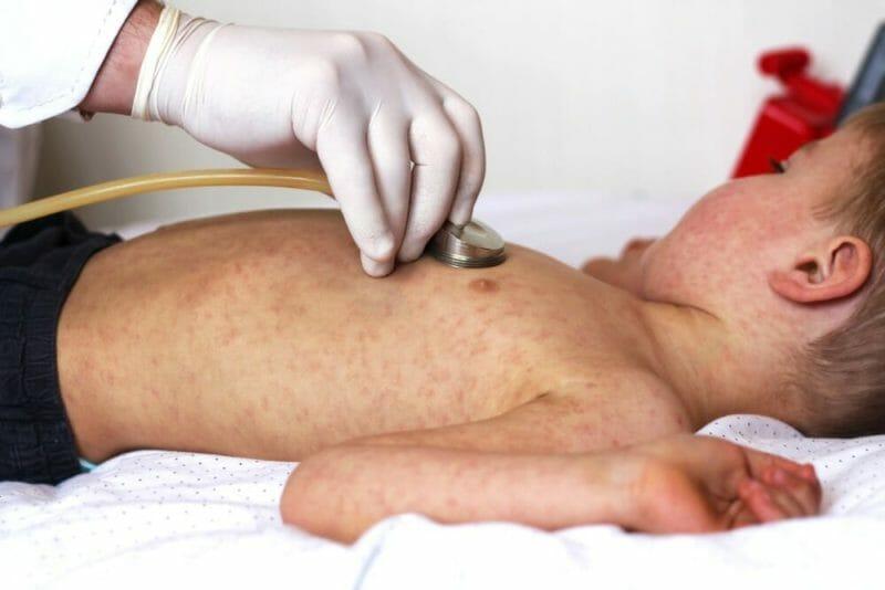 Desert Care Network Doctor Demystifies Measles