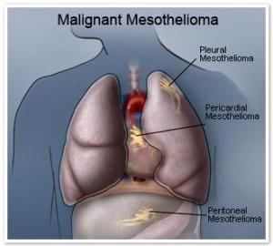 malignantmesothelioma1