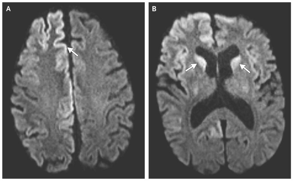 CJD prion disease