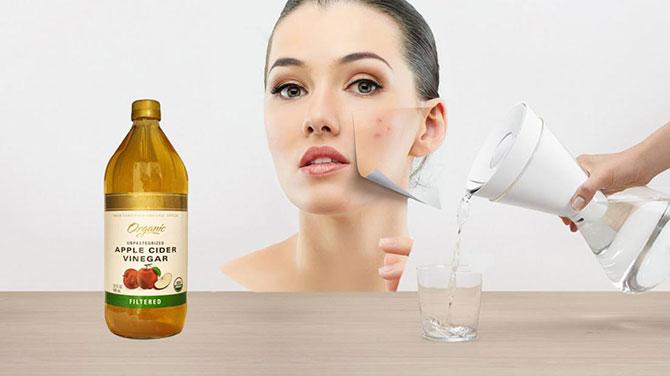 oțetul de mere și tratamentul cu varicoză)