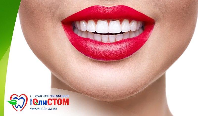 Специальная цена на отбеливание зубов Opalescence