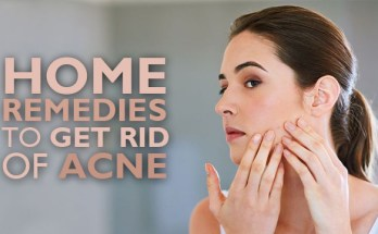 Home Remedies to Get Rid of Acne