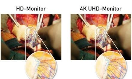 4K-OP-Monitore sind die Zukunft in der chirurgischen Medizin