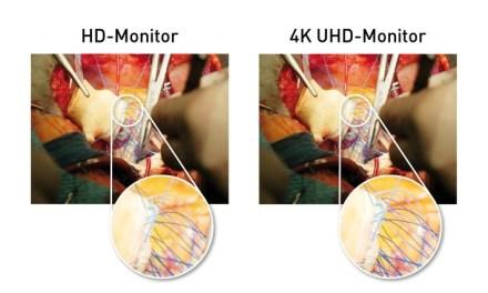 Panasonic stellt 4K UHD LCD Monitor für OP-Saal vor