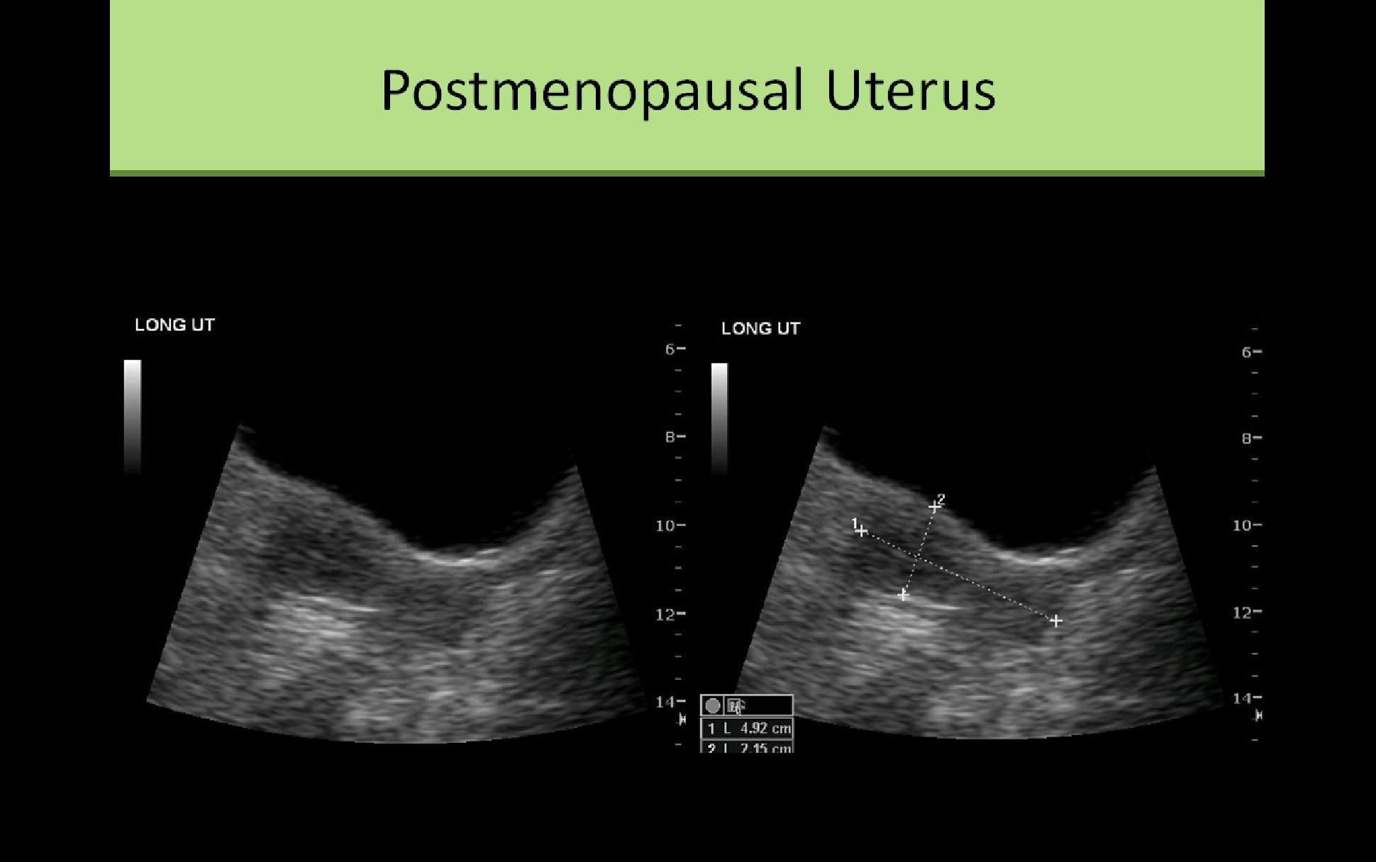 Ultrasound Registry Review