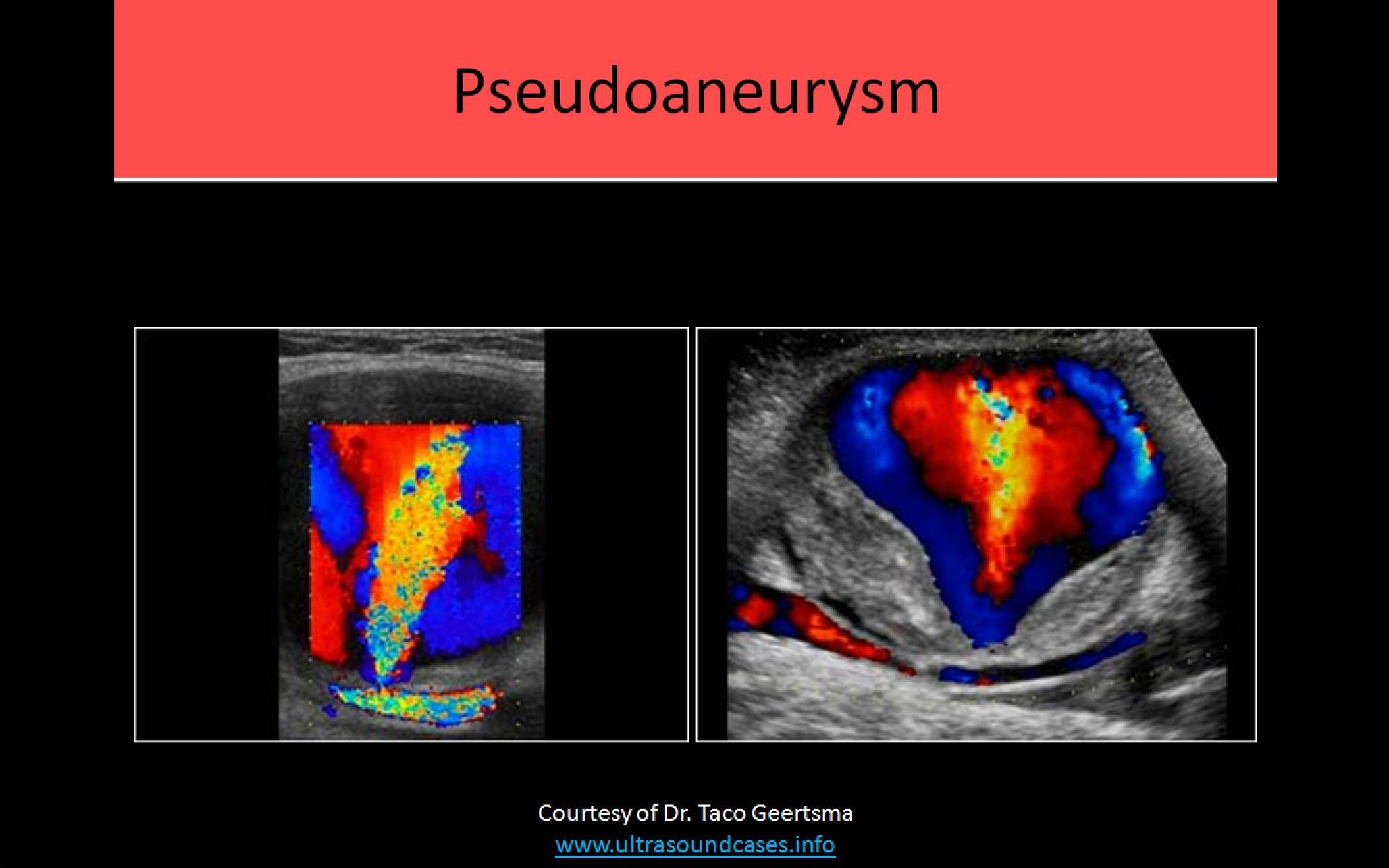 Vascular Ultrasound Registry Review Course