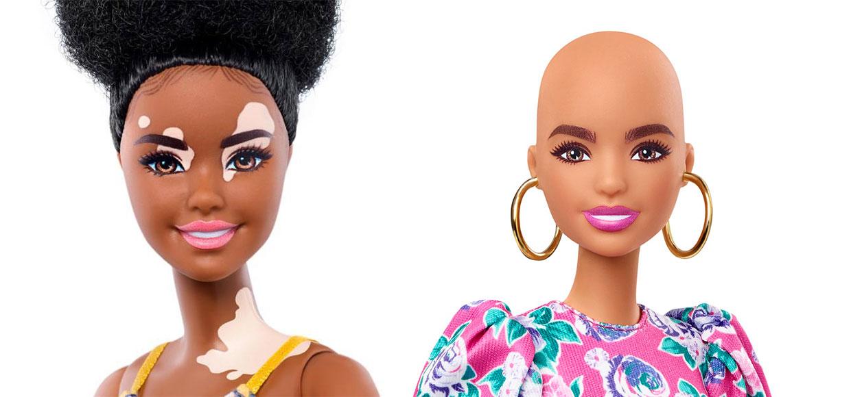 barbie-con-vitiligo-ultravioleta-1