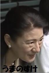 雅子さまの目袋