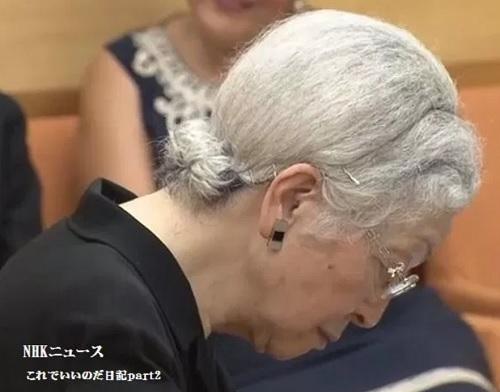 美智子皇后はカツラだった