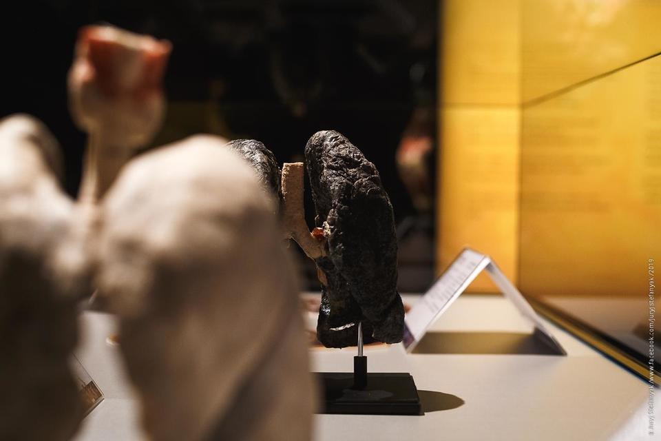 Выставка пластинированных человеческих тел в Киеве 7