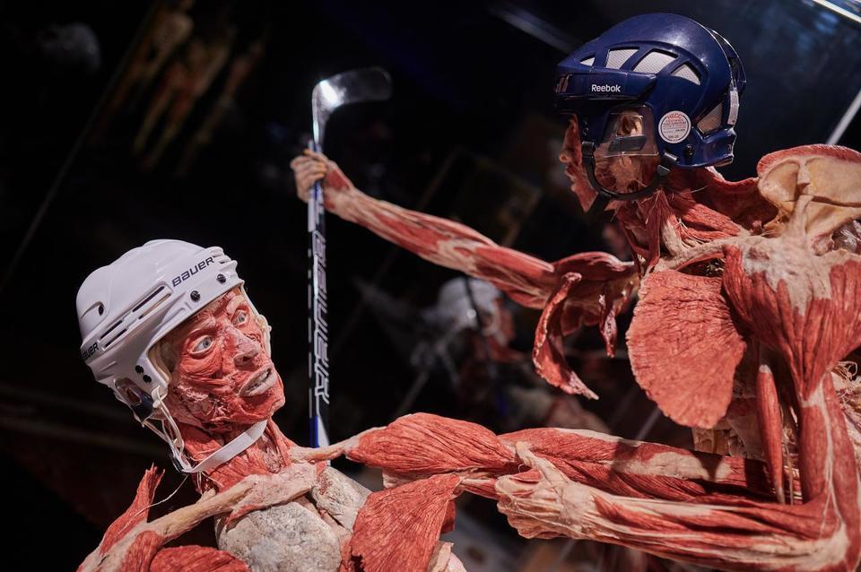 Выставка пластинированных человеческих тел в Киеве 5
