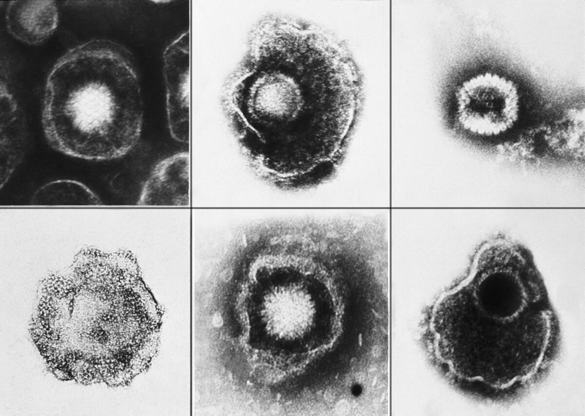 Вирус герпеса и болезнь Альцгеймера: связи не находят 1