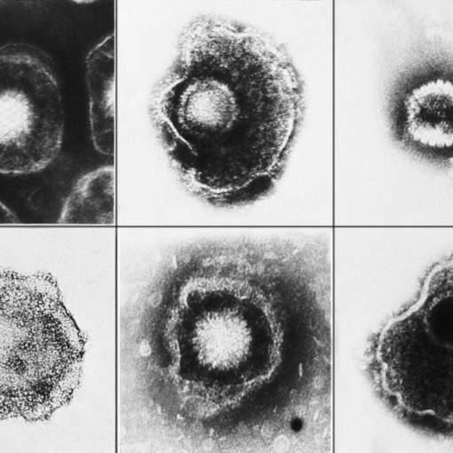 Вирус герпеса и болезнь Альцгеймера: связи не находят 22