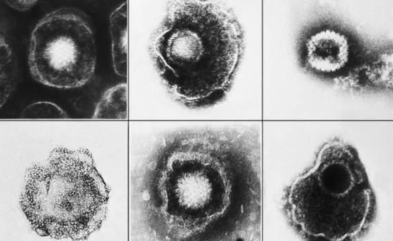 Вирус герпеса и болезнь Альцгеймера: связи не находят 9