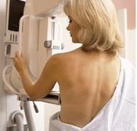 mastografía, cáncer de mama, fundacion bella, #pinkpower