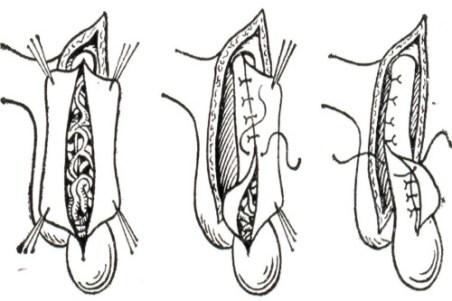 Варикоцеле (варикоз вен яичка): диагностика и лечение 2