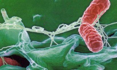 уреаплазма под микроскопом