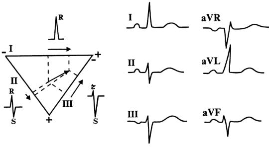 Расшифровка ЭКГ: наиболее важные показатели кардиограммы с примерами нарушений 1