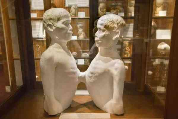 Chang and Eng at the Mutter Museum in Philadelphia
