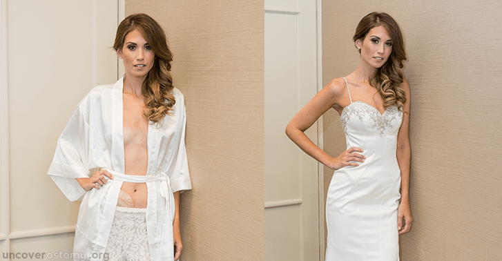uncover-ostomy_wedding-dress_ostomy-cropped