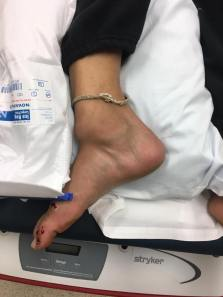 Epidemiology of ankle fractures: A prospective population ...