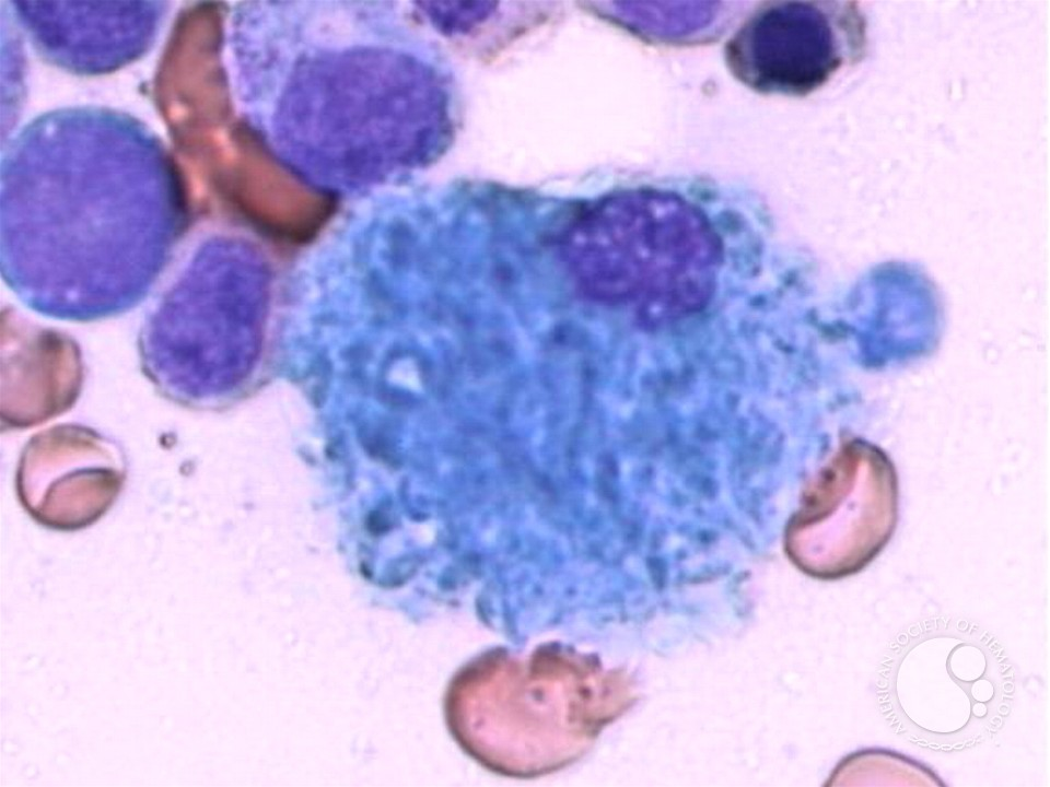 Ceroid histiocytes, otherwise referred to as SBHs !! The Sea Blue Histiocytes