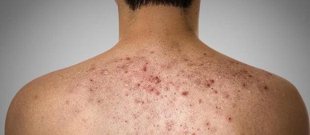 back acne