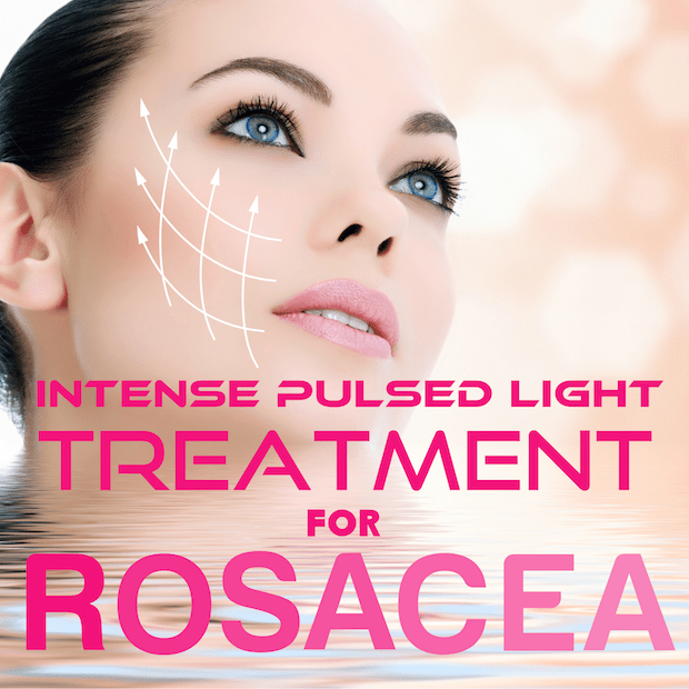 Improving the Appearance of rosacea using Intense Pulsed Therapy