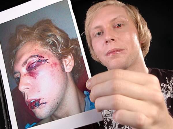Chaz Housand shows gay bashing injuries (Paul Stephen photo for StarNewsOnline)