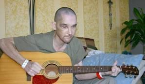 Jimmy Lee Dean, Victim of Brutal Attack