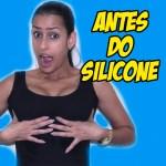 ANTES DO SILICONE – DECISÃO, MÉDICO, VALOR E EXAMES