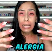 Esmaltes Hipoalergênicos e FREE (Melhores Marcas e Linhas Para Quem Tem Alergia)
