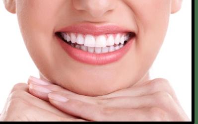 Stripping dental, una opción para evitar extracciones