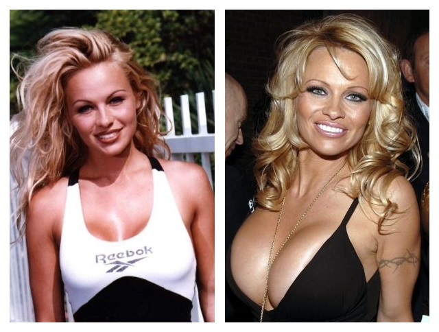 Shocking before and after celebrity surgery pictures