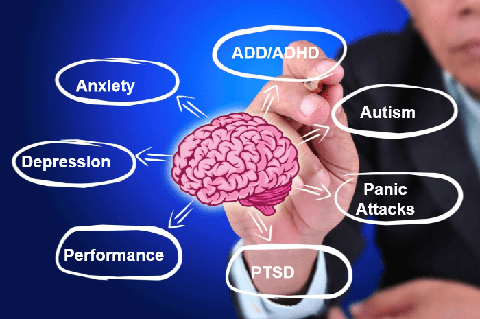 the anatomy of anxiety diagram dog parts brain health unique mindcare