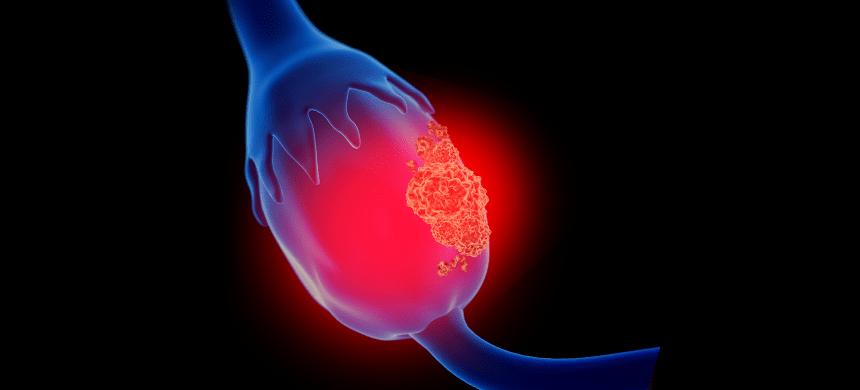 El cáncer de matriz es una de las enfermedades que más ataca a las mujeres