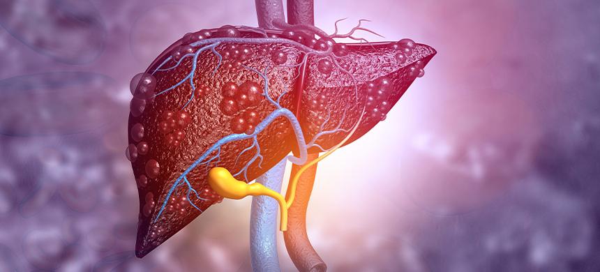 El alcoholismo puede causar cáncer, concluye estudio