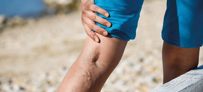Las várices y úlceras varicosas se pueden sanar