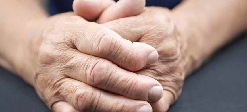 Un millón de personas son víctimas de la artritis reumatoide