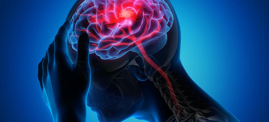 Encefalitis: ¿qué es y cómo prevenirla?