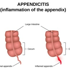 Where Are Your Appendix Located Diagram Fleetwood Motorhome Wiring Appendicitis Symptoms Causes And Treatment University Health News