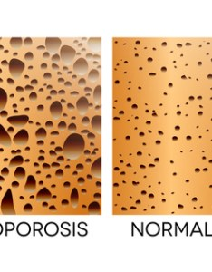 Bone density chart also understand your scores university rh universityhealthnews