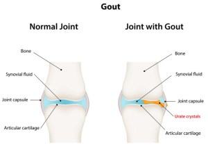 How Long Does Gout Last? These 3 Factors Determine the