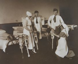 Patients having their provision limbs fitted