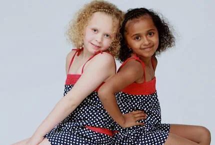 Le gemelline omozigote Kian e Remee, una bianca e l'altra nera