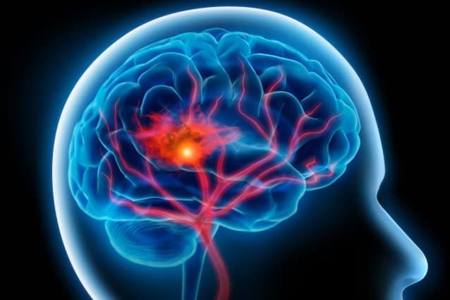 cerebro y programa dolor